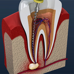 Root Canal Therapy | Bell Dental