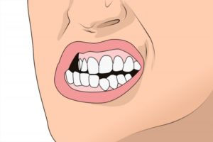 illustration of a person grinding their teeth