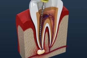 Infected tooth during root canal therapy.